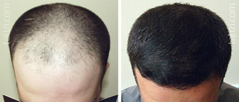Азот при выпадении волос